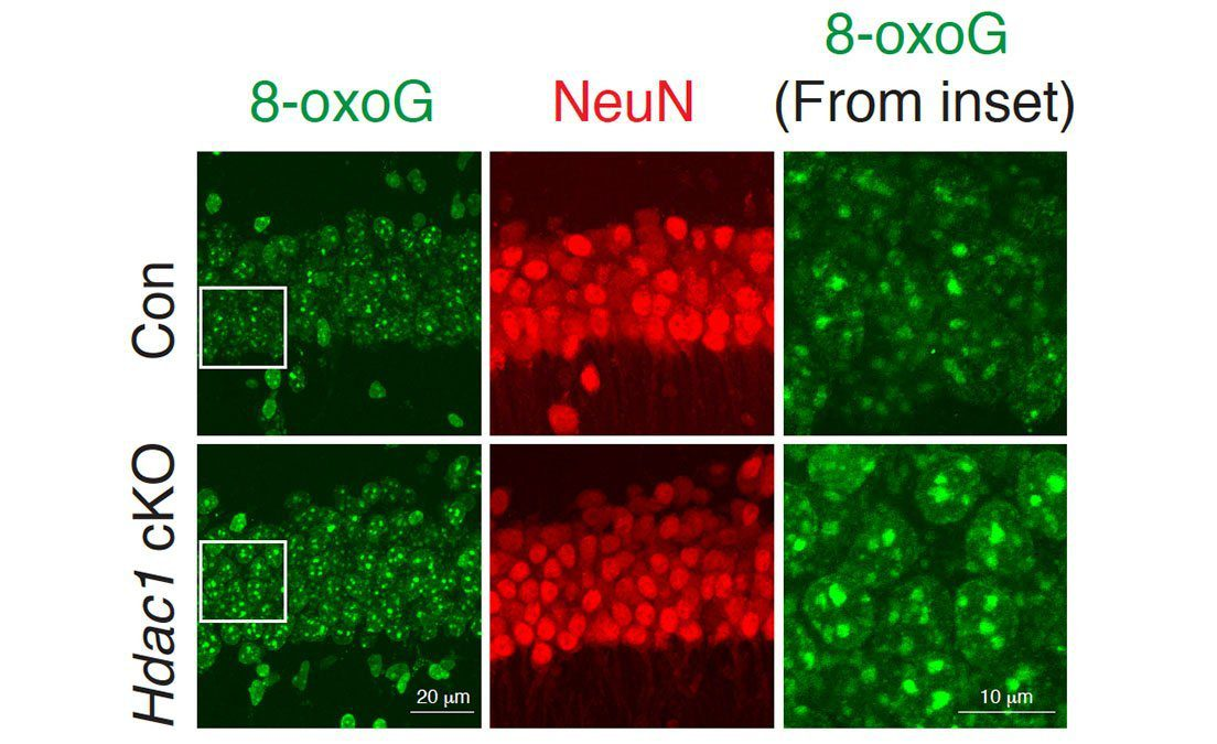 In this figure, neurons in the bottom row, which are missing the HDAC1 gene, show higher levels of DNA damage (green) than normal neurons.